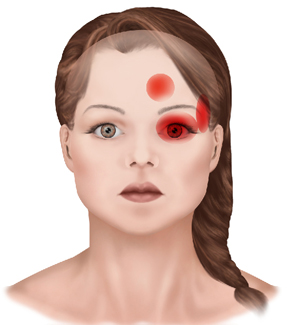 Causes Of Headaches General And Cosmetic Dentist